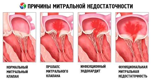 Keuhkopöhön Hoito